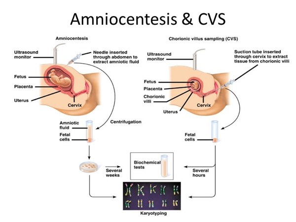 CVS Amniocentesis